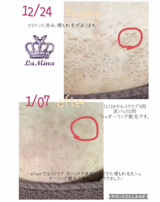Shop images Nedd scrub if you continue sugaring hair removal also brazilian wax in Ebisu