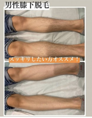 Shop images Male waxing sugaring hair removal today's booking available in Sapporo